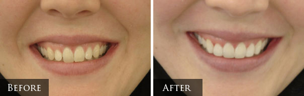Cosmetic Dentistry Prescott - Tooth Whitening/Bonding