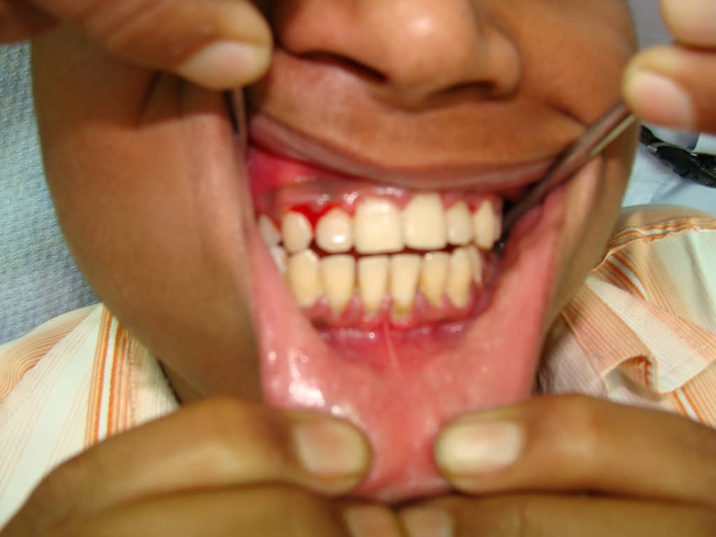 The Confusion on What Gingivitis if and What Causes it