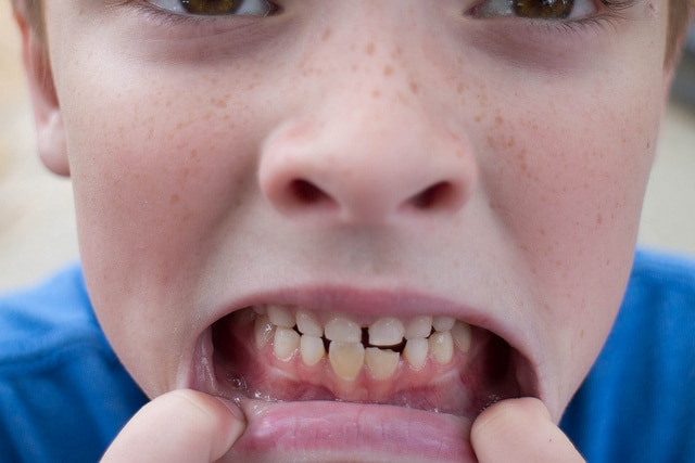 Repairing a Chipped Tooth- Prescott Dentistry