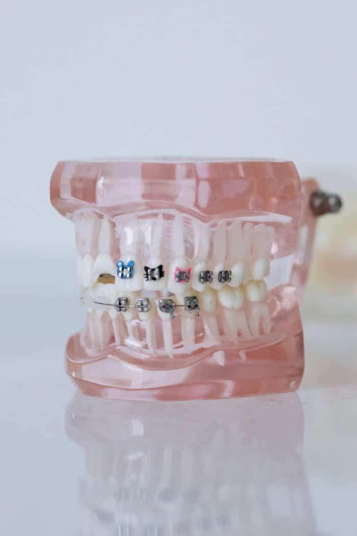 preparing for braces